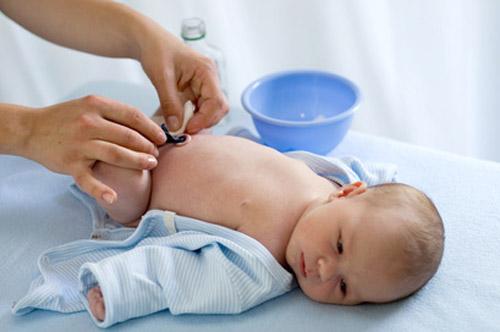 Обработка пупочной раны новорожденного