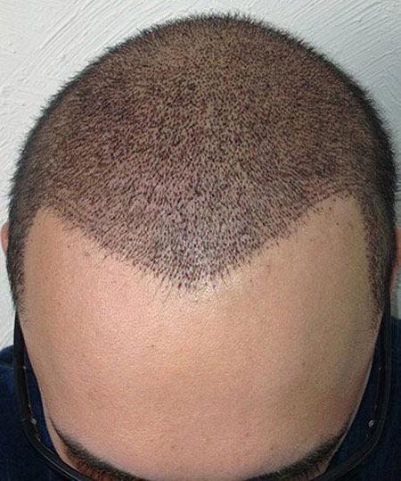 progres_hair_transplant_3-