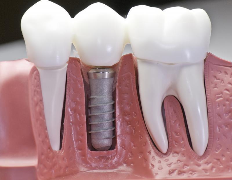 о зубных имплантах