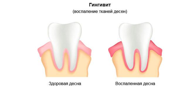 gingivit