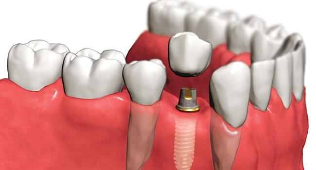 implantatsiya