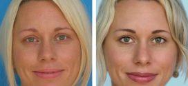 Что такое «перманентный макияж»?
