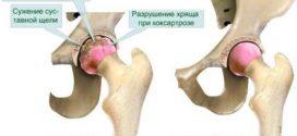 Правила профилактики осложнений при эндопротезировании